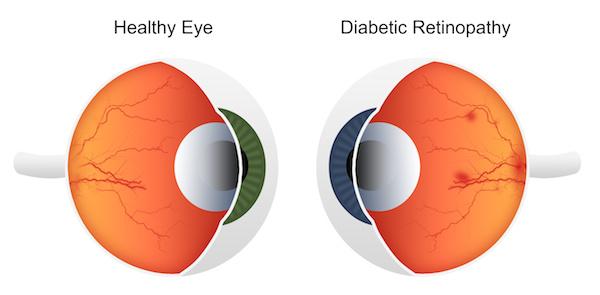 Illustration of hemorrhage in retina - Diabetic Retinopathy
