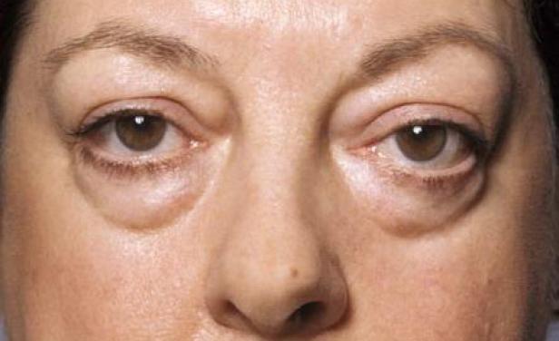 Apakah penyebab kantong & bengkak di bawah mata?