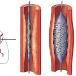 Berapa Lama Waktu Pemulihan Setelah Angioplasty?