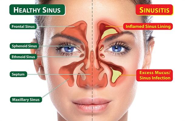 Gejala, Penyebab & Faktor Resiko Sinusitis Akut Amazine.co Sinusitis