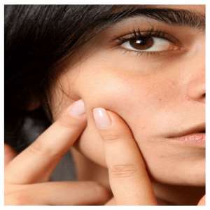 Pimples Treatment