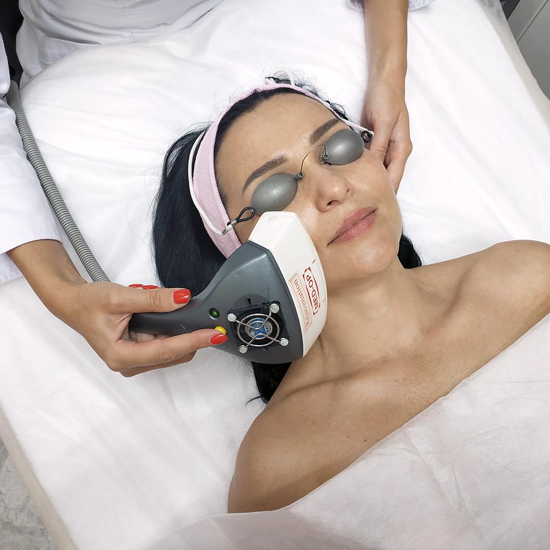 Процедура фотоомолодження шкіри