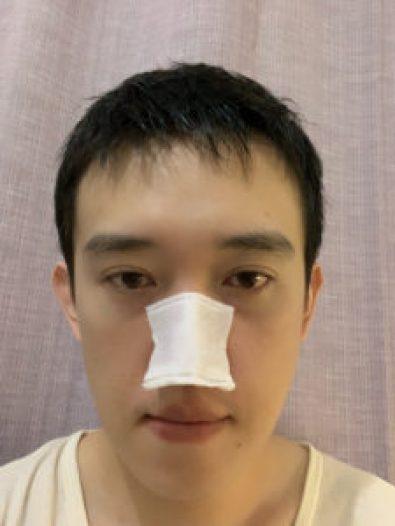健康化妝水冷敷鼻子