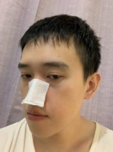 健康化妝水冷敷鼻子側臉