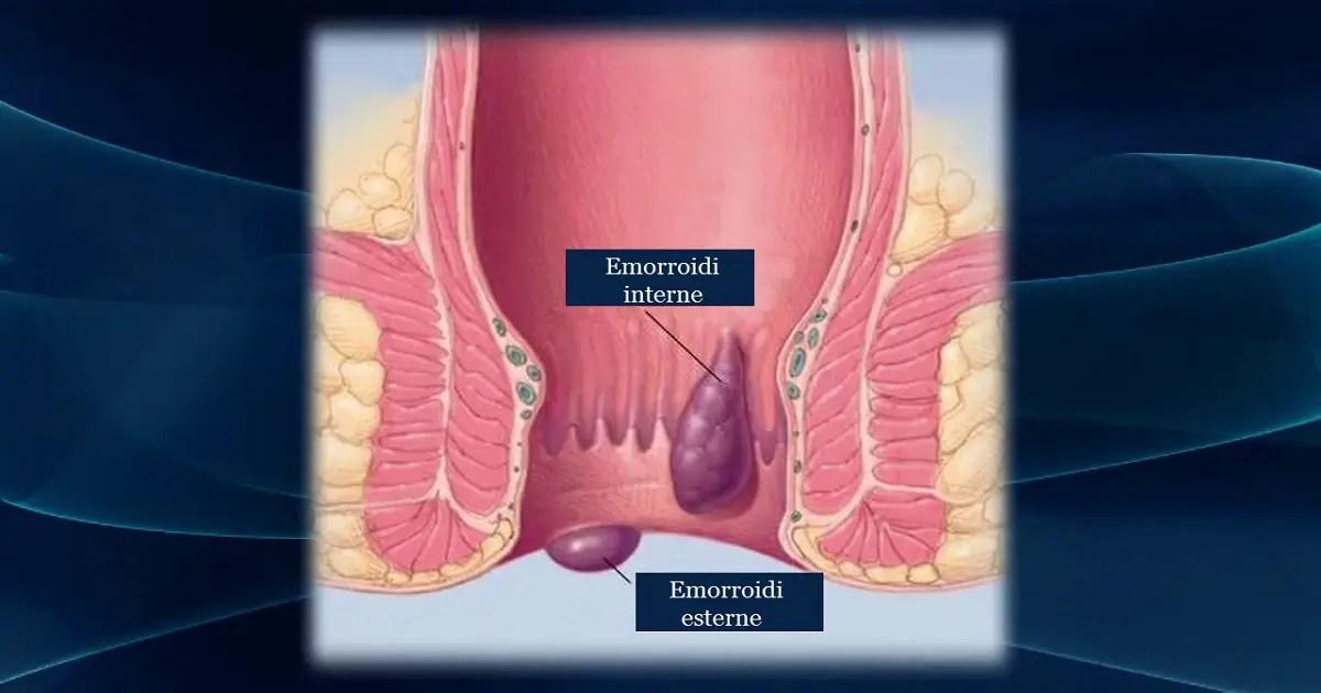 Emorroidi scopriamo insieme cause sintomi e rimedi naturali