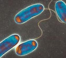 Ambiplaga: Control de Legionella