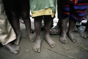 Shoe-less Children in Africa