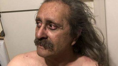 Photo of Η συγκλονιστική ανάρτηση τυφλού επιζήσαντα από τον πύρινο εφιάλτη στο Μάτι