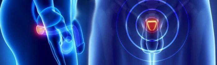 A prosztatitis legjobb vitaminjai A prostatitis kezelése a férfi gyógynövényekben