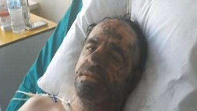 Photo of Συγκλονιστική μαρτυρία εγκαυματία: «Κάηκα στην προσπάθεια να σώσω την παραπληγική γυναίκα μου- Δεν τα κατάφερα…»