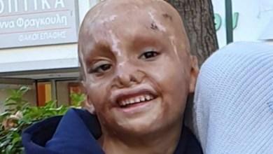 Photo of Έκκληση για βοήθεια: Ο 6χρονος Ιωάννης έχασε τα άνω άκρα του όταν πήρε φωτιά το σπίτι του και μας χρειάζεται