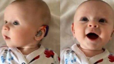 Photo of Η στιγμή που βρέφος με σοβαρή κώφωση ακούει τη φωνή της μητέρας του [video]