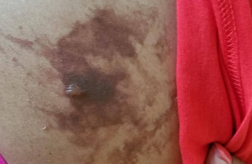 A photo showing burns on the abdomen of Vandana Jhingan