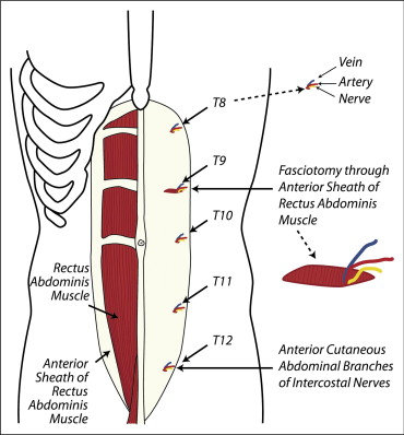 Chronic abdominal wall pain—A diagnostic challenge for the ...