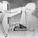 CPT code Changes in 2017 for digital Screening Mammogram
