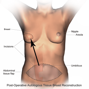 How to code Breast Reconstruction cpt codes