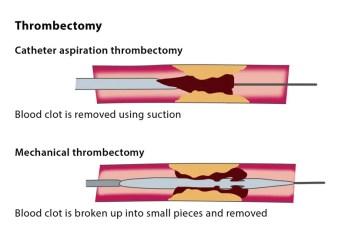 Code Mechanical Thrombectomy in Dialysis AV fistula