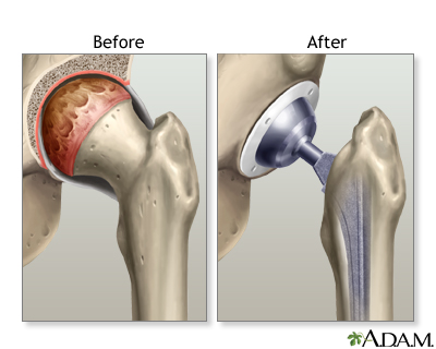 CPT and ICD coding tips for Total hip arthroplasty