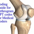 Superb Coding Guide for Arthrogram CPT codes