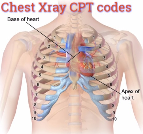 Cpt Code 71010 cr chest ap x ray Coding guide