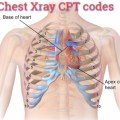 Cpt Code 71020 and 71010 chest x ray Coding guide