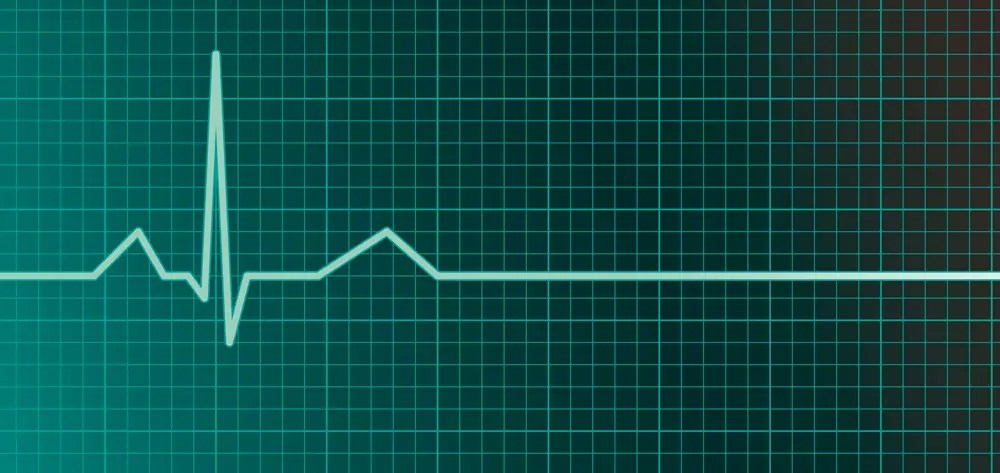Recognizing ventricular arrhythmias and preventing sudden