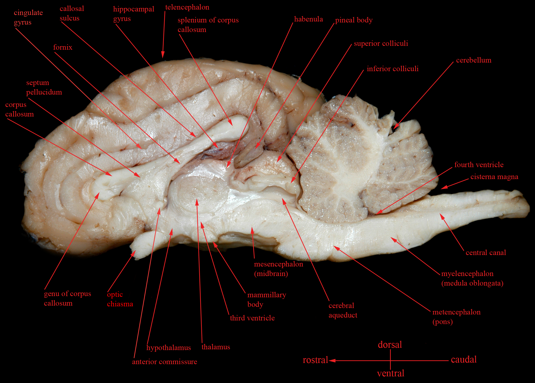 sheep brain superior view diagram dc wiring lab images amherst college