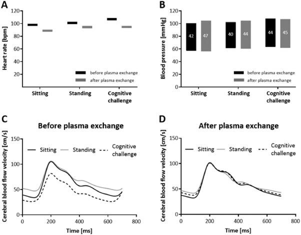 Plasma Exchange Therapy in Postural Tachycardia Syndrome
