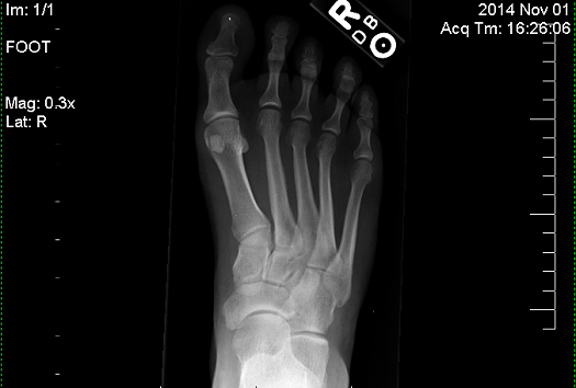 X-ray of injury around 5th metatarsal