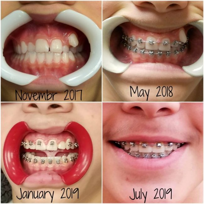 What to Expect: Almost Done with Braces - A Mom's Take