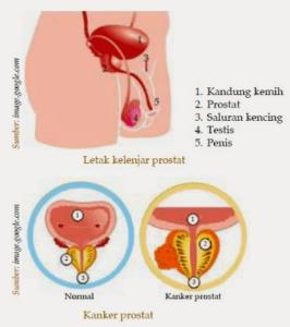 Gangguan dan Penyakit Sistem Reproduksi Manusia Serta Penjelasannya