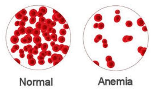Berbagai Gangguan Sistem Peredaran Darah Manusia dan Upaya Pencegahannya