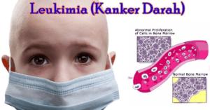Kenali Penyakit Kanker Darah Leukimia pada Anak, Ciri-ciri serta Gejalanya