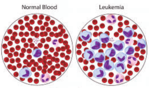 Inilah 7 Gejala Kanker Darah Leukimia Yang Wajib Anda Ketahui
