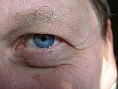 eye with wrinkled skin