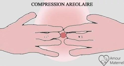 engorgement mammaire méthode de compression aréolaire