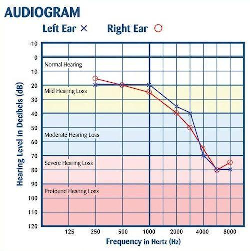 Audiograma