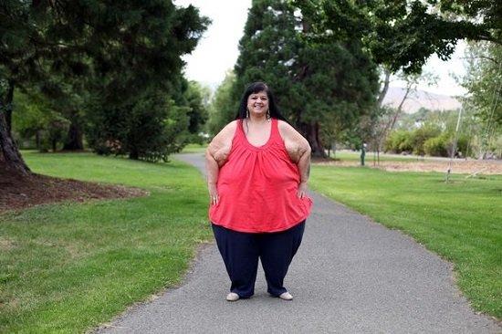 Después de la pérdida de peso (foto: Reproducción / Barcroft)