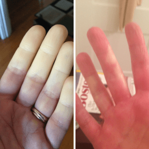 Post-run Reynaud's fingers on the left, and partially warmed on the right.