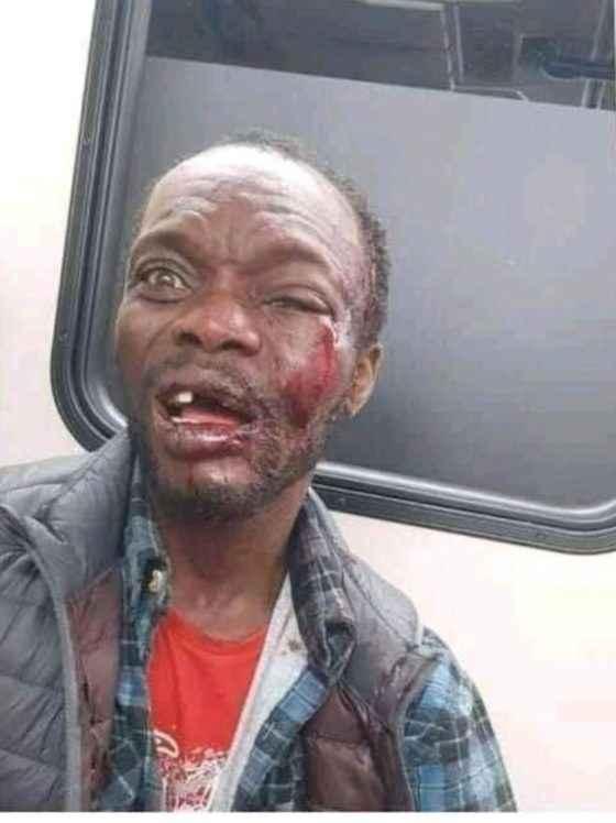 Beaten Pastor
