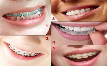 Rincian Biaya Pemasangan Behel di Dokter Gigi