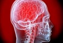 Salud, Cerebro, Covid, Neurología