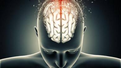 Photo of اعراض سرطان الدماغ عند السيدات