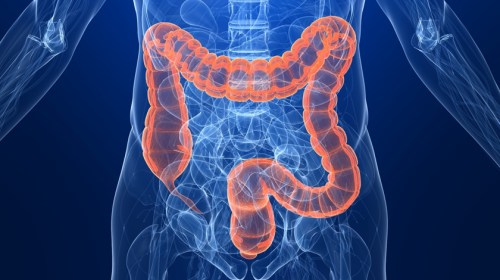 Colon and Rectal Cancer Rising in Young People – Why?