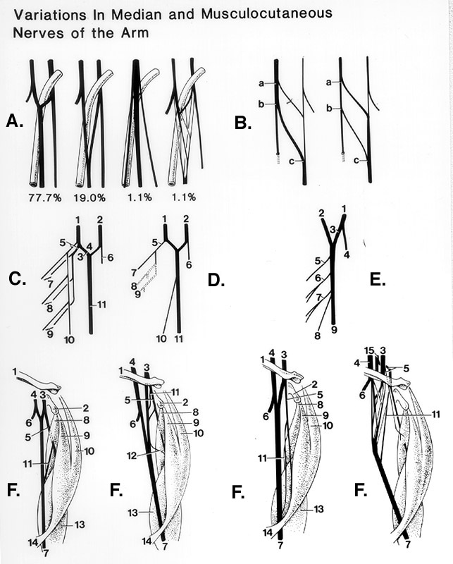 A: Formation of the median nerve. Relationship of axillary
