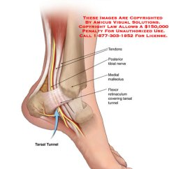 Foot Pulses Diagram Mini Hdmi Cable Wiring (07007_01b) Normal Tarsal Tunnel Anatomy – Exhibits