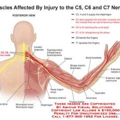 Nerves In Neck And Shoulder Diagram 586b Wiring Cervical Pinched Nerve