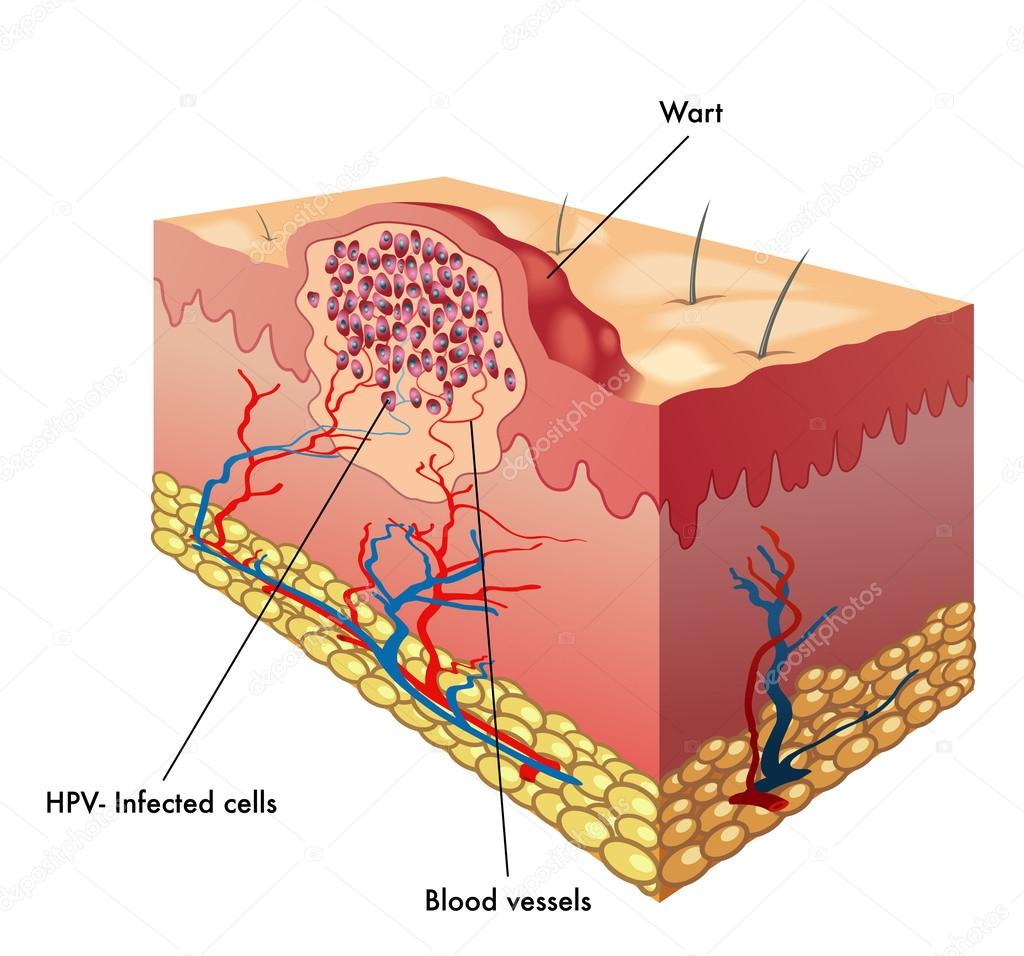 hight resolution of diagram of hpv wart