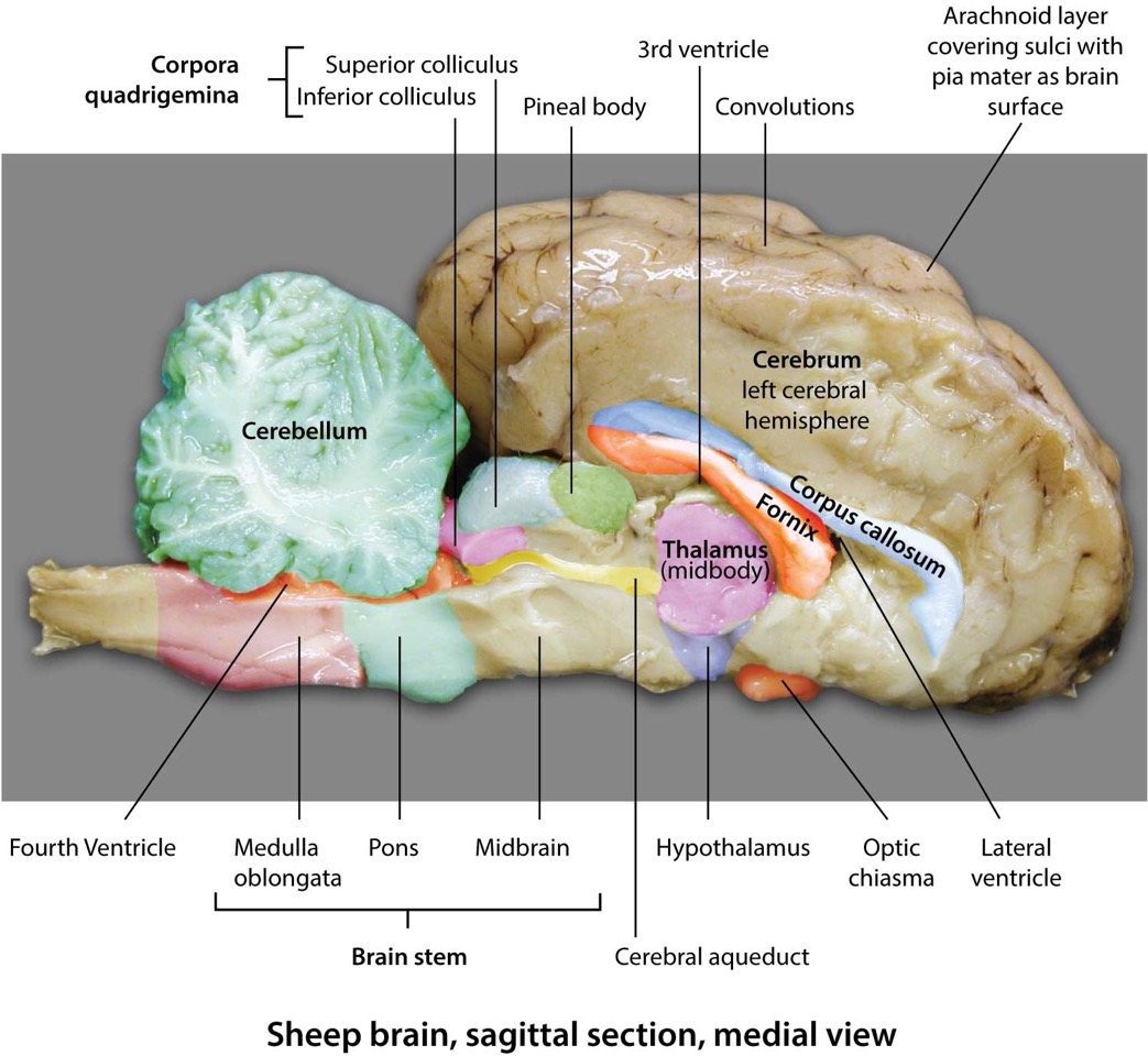 Sheep Brain Sagittal Section Medial View