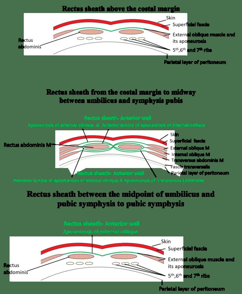 Rectus Sheath - formation, contents, abdominal incisions -